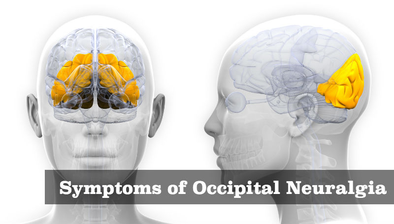 Symptoms of Occipital Neuralgia